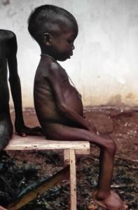 ビアフラ戦争で飢餓に苦しむ子供
